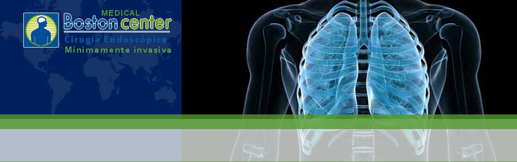 Biopsias pulmonares, Tratamiento de sudoración de manos por endoscopía