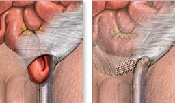 hernia escrotal inguinal y cáncer de próstata