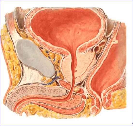 porque la estenosis uretral causa micción frecuente