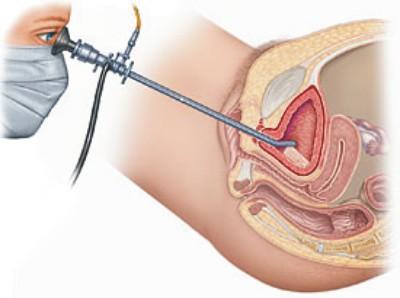 endoscopia renal